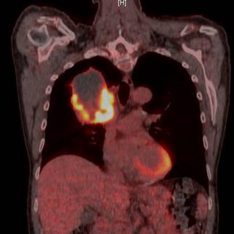 Nice pair of lungs